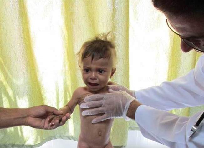 Severe acutely malnourished child on admission at PHC in Aleppo governorate