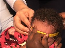 Head circumference measurement in Kenya during the study