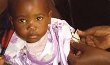 A young child being assessed for admission to the Zambia programme